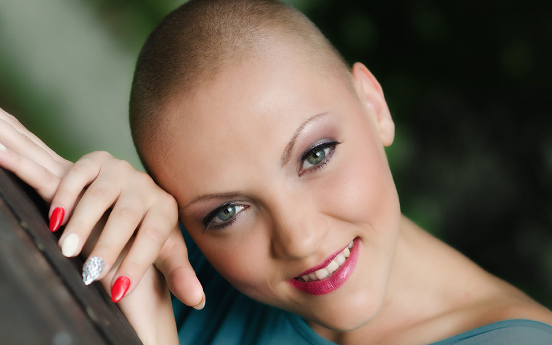 JOCELYN: Three Weeks After I was Married I Was Diagnosed With Cancer